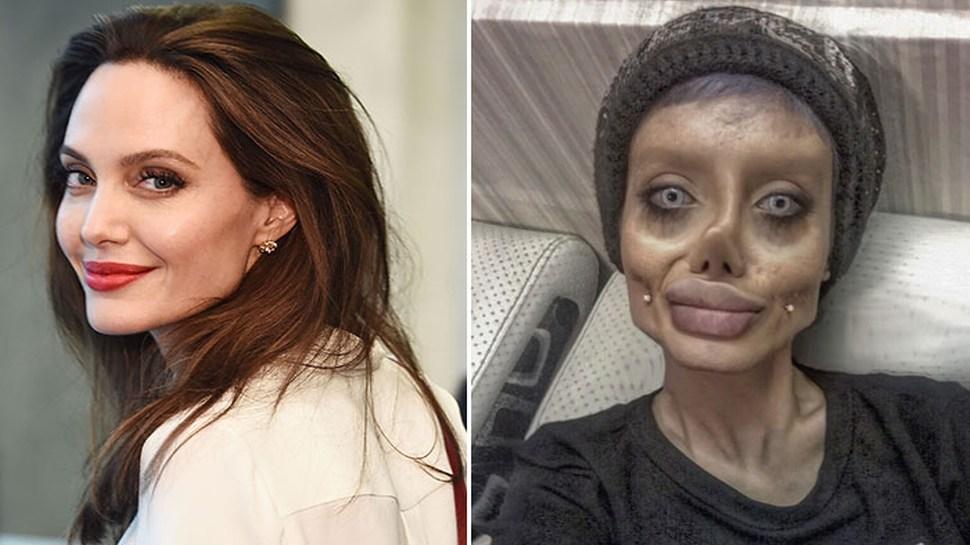 शस्त्रक्रियेमुळे नव्हे 'या' मुळे बिघडला तरूणीचा चेहरा
