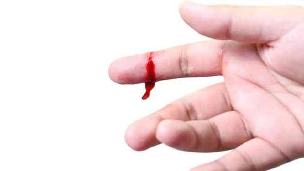 वाहणारे रक्त थांबवण्याचे घरगुती उपाय!