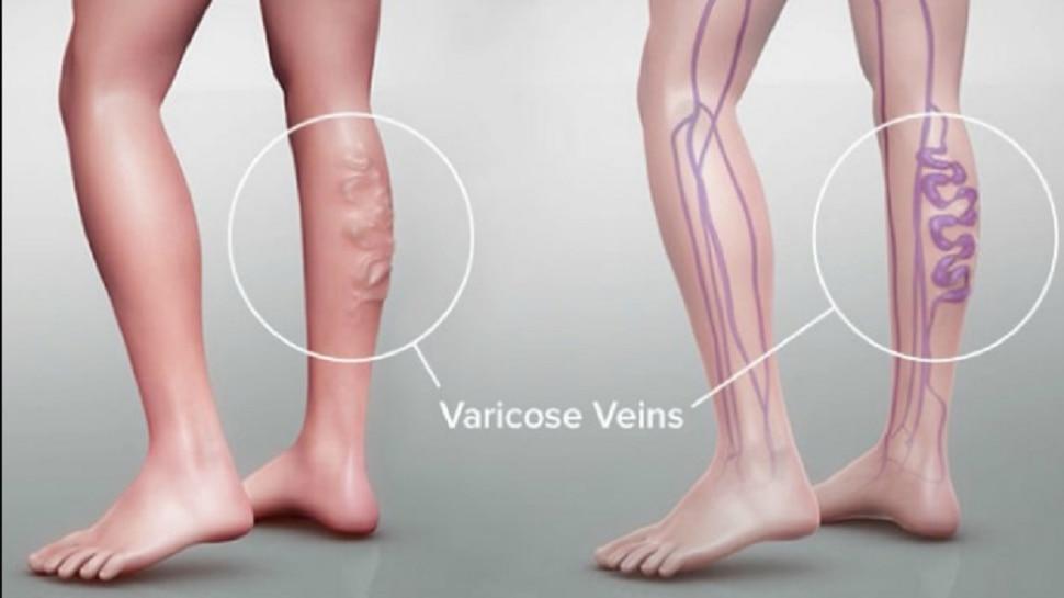 व्हेरिकोस व्हेन्स आजार होण्याची प्रमुख कारणे