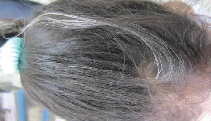 पांढऱ्या केसांवर घरगुती रामबाण उपाय