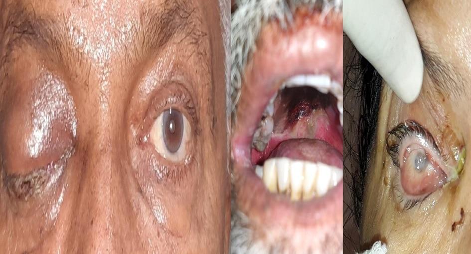 कोरोनाचे साईड इफेक्ट : बापरे ! चक्क डोळे, हिरड्यासह दात काढण्याची वेळ