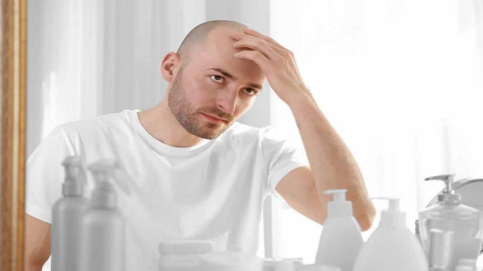 फक्त पुरुषांनाच टक्कल का पडते? स्त्रियांना का पडत नाही? काय आहे कारण जाणून घ्या