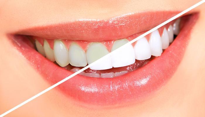दोन मिनिटांत चमकवा तुमचे दात