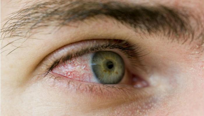 तुमचे डोळे लाल होत असतील तर...