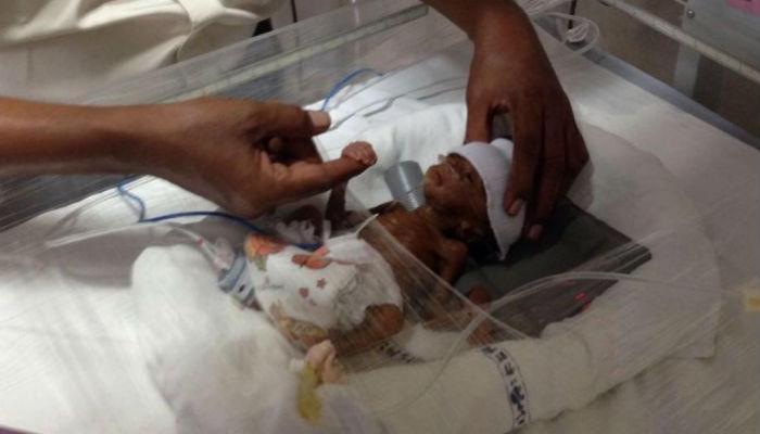 मोबाईलच्या वजनाएवढं जन्मलं बाळ... डॉक्टरांच्या करिश्म्यामुळे वाचला जीव