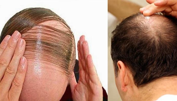 या १० घरगुती उपायांनी केस पुन्हा वाढण्यास मदत होईल!