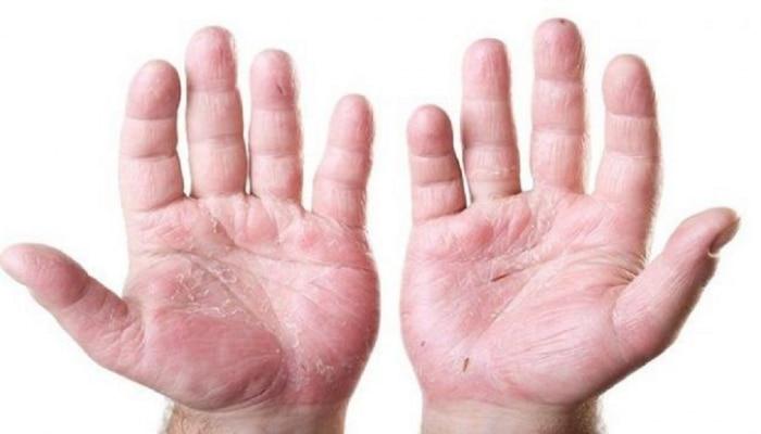 हाताची त्वचा निघते? मग करा हे घरगुती उपाय!
