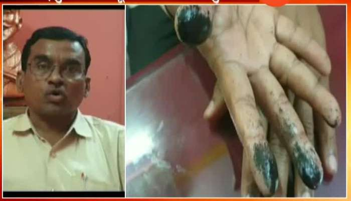 Election Officer Three Fingers Injured By Putting Ink On Voters Fingers