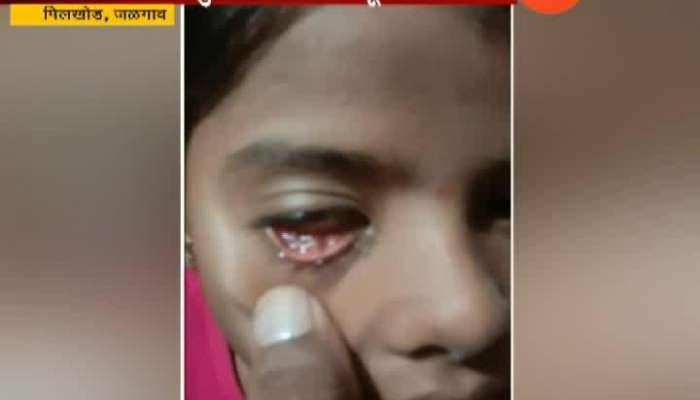 Jalgaon,Pilkhod School Girl Stone From Eye