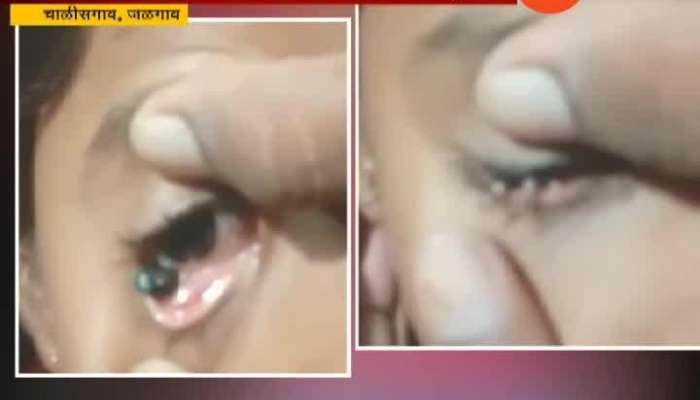Jalgaon,Pilkhod School Girl Stone From Eye Update