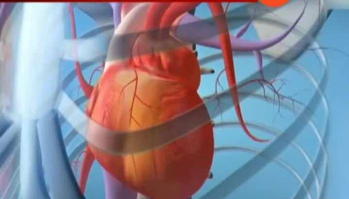 unnecessary Angioplasty by doctors